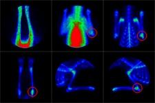 Bone Scintigraphy