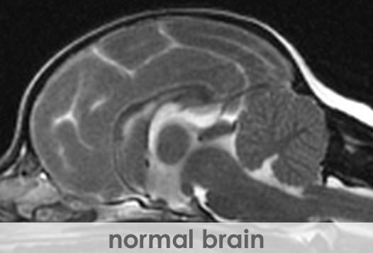 MRI-NormalBrain