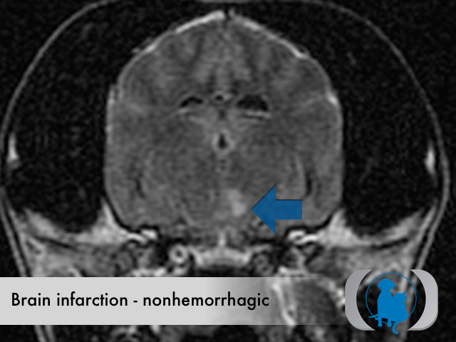 Brain infarction nonhemorrhagic