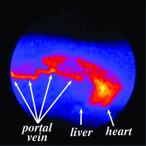 Figure 3. Composite image showing the uptake of a radioactive dye from the rectum into the portal vein. Notice that the dye bypasses the liver and appears in the heart and lungs first.