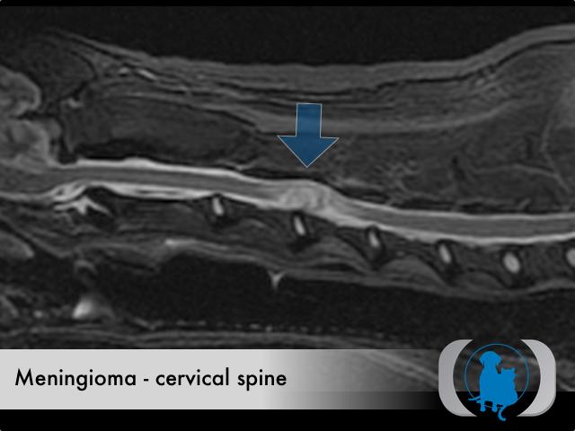 Meningioma spinal