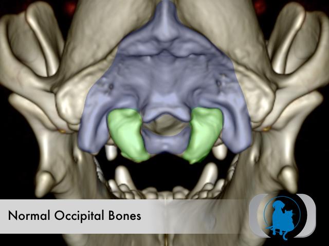 Normal occipital bones