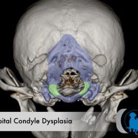 Occipital Dysplasia