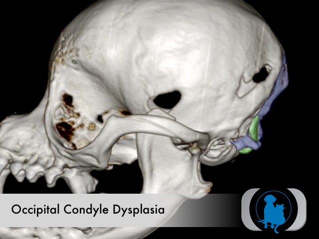 Occipital dysplasia - attenuated condyles